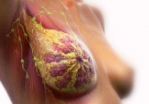 Рак педжета соска