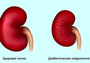 нефропатия при сахарном диабете лечение