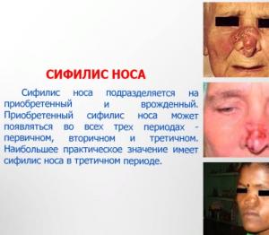 Сифилис носа - описание