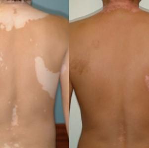 ПУВА-терапия: суть процедуры, виды воздействия, эффективность лечения