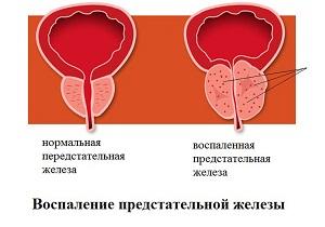 воспаление предстательной железы симптомы