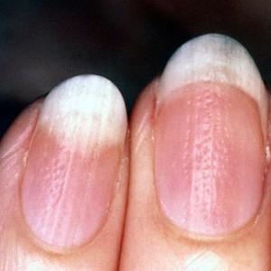 Псориаз ногтей: причины появления, формы развития, способы лечения болезни