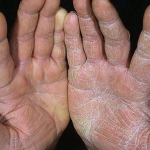 Как бороться с сухой кожей на ладонях