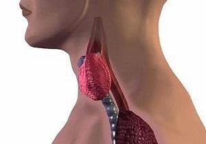 Коллоидный зоб щитовидной железы – узловой, кистозный, диффузный