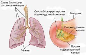 Муковисцидоз может быть причиной низкой пневматизации пазух носа