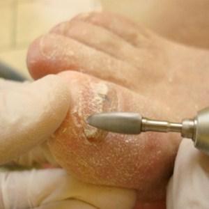 Правила проведения педикюра при грибке ногтей