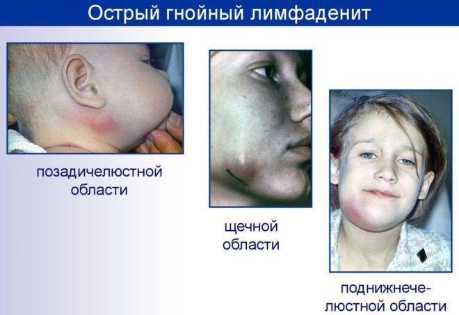 Симптомы лимфаденита у детей