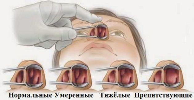 Какие бывают виды полипов в носу