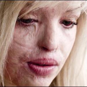 Клиническая картина и лечение ожога на лице