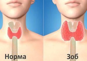 щитовидная железа аутоиммунный тиреоидит