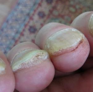 Почему на руках и ногах утолщаются ногти