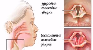 Голосовые связки при хроническом ларингите