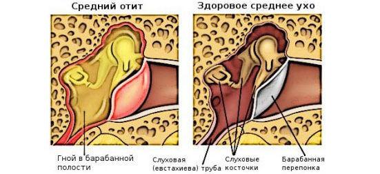 Двухстороннее воспаление среднего уха