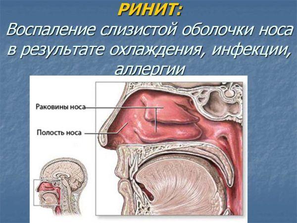 Ксилометазолин эффективен в лечении при таком заболевании как ринит и другие перечисленные выше патологии