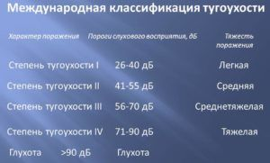 Международная классификация тугоухости