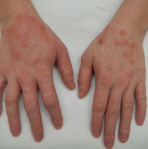 Заразен ли дерматит