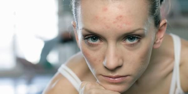 Особенности течения и методы лечения себорейного дерматита на лице