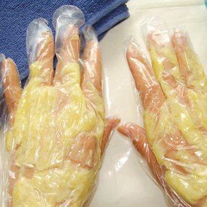 Особенности грибкового поражения рук