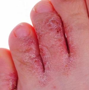 Причины и методы лечения грибка на ногах у детей