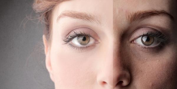 Симптомы и лечение меланоза кожи