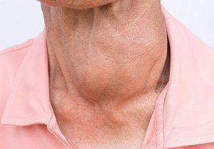 щитовидная железа диффузно узловой зоб