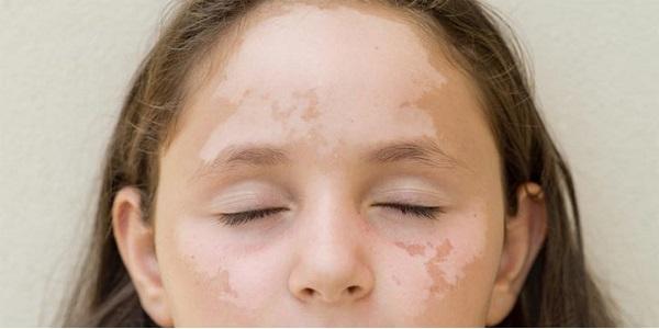 Белые пятна на лице у ребенка. Причины появления белых пятен на лице у детей и взрослых Белые полосы на лице у ребенка