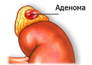 аденома надпочечников у женщин лечение