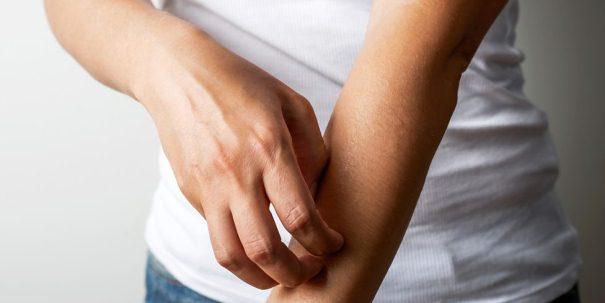 Солярий и псориаз: как действует ультрафиолет на пораженную кожу