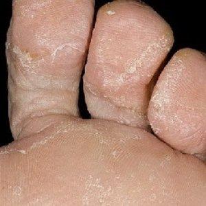 Эффективные средства с уксусом для лечения грибка на ногах