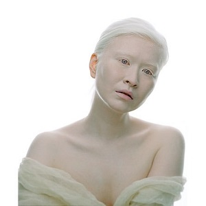 Типы и признаки альбинизма