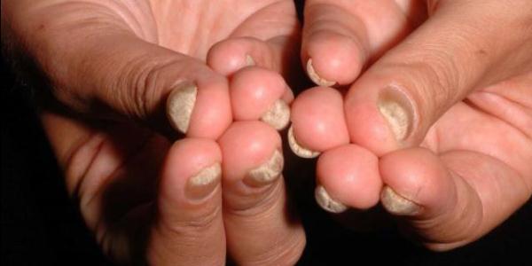 Как в домашних условиях удалить пораженный грибком ноготь