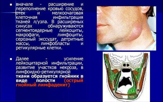 Ещё одна из причин неприятного запаха за ушами может быть -Лимфаденит