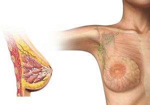 фиброзно жировая инволюция молочной железы