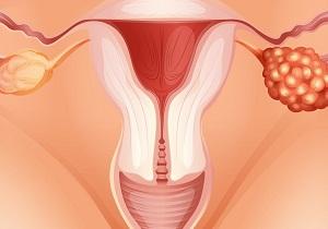 гиперандрогения яичникового генеза