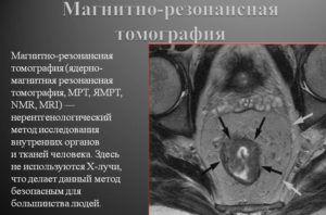 Для выявления патологии проводят МРТ
