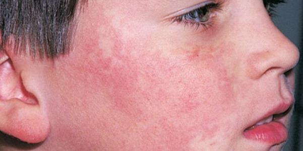 Основные симптомы и терапия инфекционной вирусной эритемы Чамера