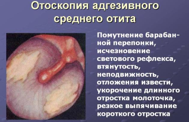 При адгезивном отите допускается проведение процедуры пневмомассажа