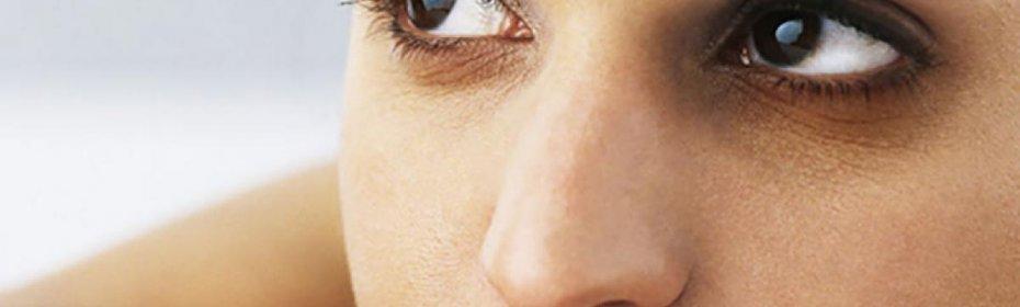 Лучший метод убрать синяк под глазом