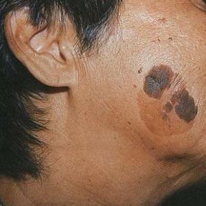 Что такое кератома и как ее лечить