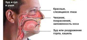 Признаки аллергии горла