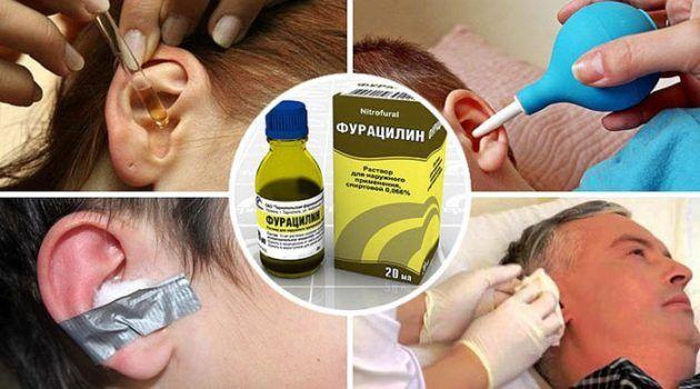 Раствор фурацилина для уха