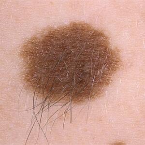 Причины, симптомы, лечение меланоформного невуса