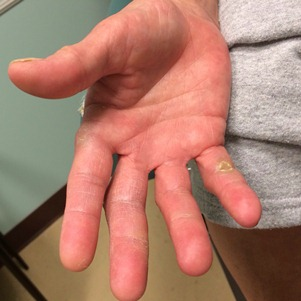 мозоли на пальцах рук