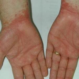 Применение Нафтифина при грибковых заболеваниях
