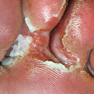 Лечение грибка стопы народными средствами