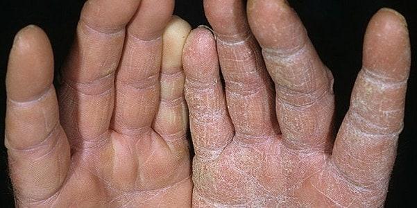 Грибок на руках: симптомы, лечение и фото