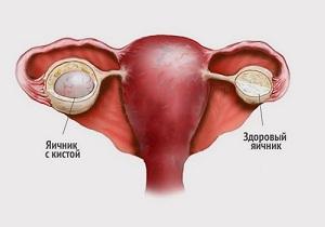 киста правого яичника