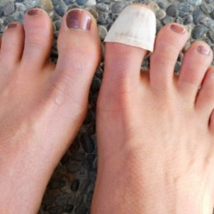 Бифосин — средство от грибка ногтей: характеристики, применение, аналоги
