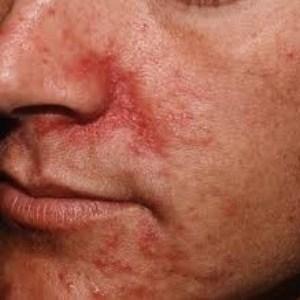 Периоральный дерматит: общие понятия о заболевании