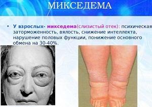 заболевание микседема
